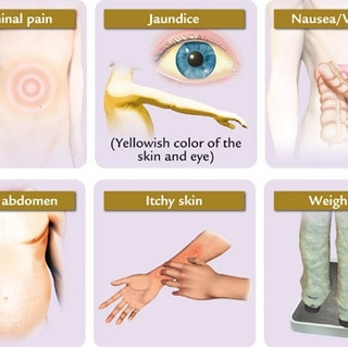 Jaundice: Read About Causes, Symptoms and Treatment